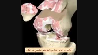 آرتروز و عمل تعویض مفصل زانو