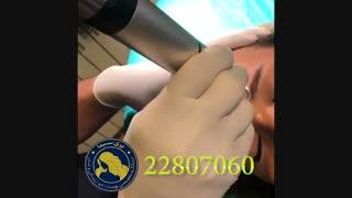 لیزر جوانسازی - 22807060
