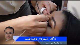 نحوه چسب زدن بینی | دکتر شهریار یحیوی