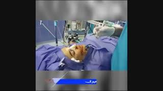 تزریق فیلر به گونه همزمان با جراحی بینی | دکتر شهریار یحیوی