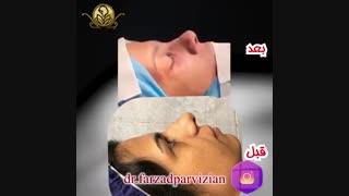 فیلم جراحی زیبایی بینی همراه با عمل انحراف بینی