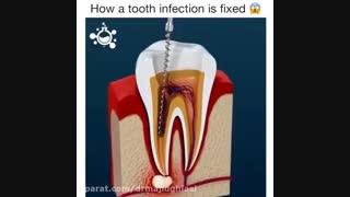 درمان ریشه-دکترمجیدقیاسی دندانپزشک زیبایی مشهد