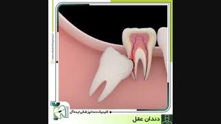 آیا دندان عقل را حتما باید کشید؟ |  کلینیک دندانپزشکی ایده آل
