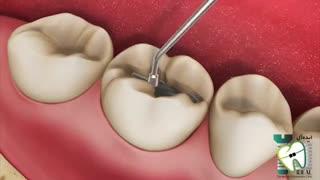پرکردن دندان با آمالگام (مواد نقره ای) | کلینیک دندانپزشکی ایده آل