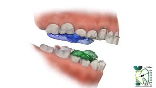 دستگاه فانکشنال | کلینیک دندانپزشکی ایده آل