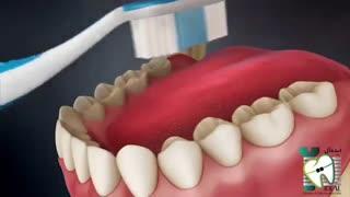 دلیل بوی بد دهان | کلینیک دندانپزشکی ایده آل