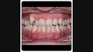 درمان ارتودنسی بدون جراحی فک و بدون کشیدن دندان | دکتر قریشی
