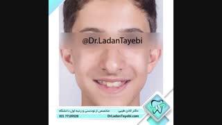 درمان ارتدنسی جهت اصلاح بی نظمی دندانی   دکتر لادن طیبی