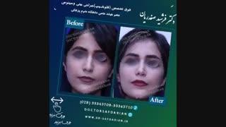 نمونه جراحی های بینی دکتر فرشید صفدریان