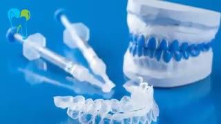 بلیچینگ دندان در منزل | دکتر شبنم شریفی میلانی