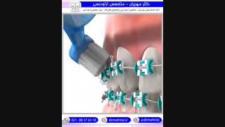 نحوه استفاده صحیح از مسواک در طول درمان ارتودنسی | دکتر مهریزی