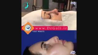 بلافاصله بعد از جراحی بینی  | دکتر گلی