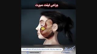 انیمیشن جراحی لیفت صورت
