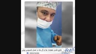 فیلم جراحی ترمیمی بینی