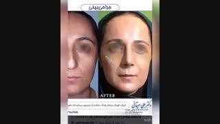 رضایت بیمار از جراحی زیبایی بینی توسط دکتر علی میقانی