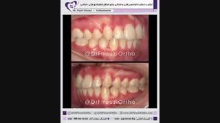 ترکیب درمان ارتودنسی فکی و دندانی برای اصلاح ناهنجاری فکی دندانی | دکتر فیروزی