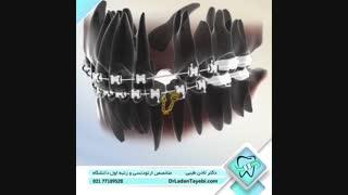 درمان دندان نیش نهفته   دکتر لادن طیبی
