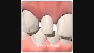 درمان  دندان های لترال کوچک | دکتر قریشی