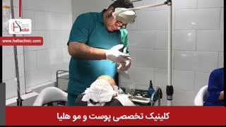 کاشت مو به روش میکروگرافت | کلینیک هلیا | 02122810089 | شماره 48