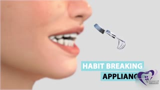 دستگاه عادت شکن برای اصلاح ناهنجاری فکی دندانی | دکتر فیروزی