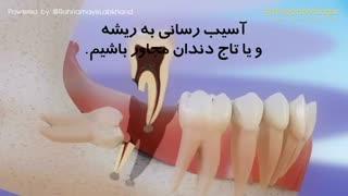 آیا دندانهای عقل میتوانند باعث ایجاد نامرتبی دندانی شوند؟ | دکتر دادگر