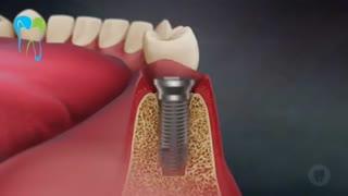 مزایای ایمپلنت دندان | دکتر شریفی میلانی