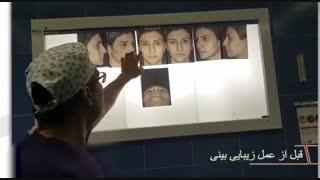 فیلم قبل از عمل زیبایی بینی