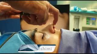 عمل زیبایی بینی پهن و دارای انحراف و فرورفتگی   دکتر ابراهیمی