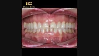 اصلاح طرح لبخند | دکتر لیلا عطایی