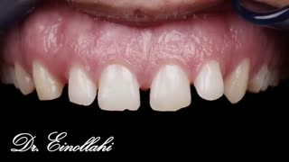 نمونه اجرای  ویدیویی قبل و بعد درمان | راهنمای لبخند