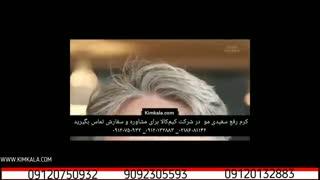 محلول گیاهی رفع سفیدی مو | سفیدی مو در جوانی| 09120750932 | درمان سفیدی موی سر | محلول گیاهی تقویت مو آقایان