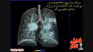 ریه های یک کرونایی