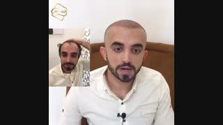 کاشت مو به روشSUT -کلینیک تخصصی رنسانس