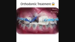ارتودنسی دندان مشهد-دکترمجیدقیاسی دندانپزشک زیبایی مشهد